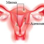 Симптомы и лечение аденомиоза матки