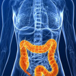 Колит кишечника симптомы и лечение