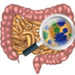 Симптомы дисбактериоза кишечника у взрослых, лечение и диета