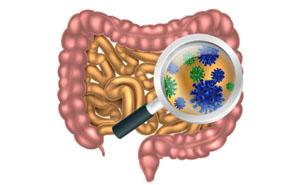 Дисбактериоз кишечника симптомы лечение у взрослых