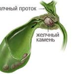 Симптомы дискинезии желчевыводящих путей, лечение и диета