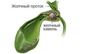 Симптомы и лечение дискинезии желчевыводящих путей