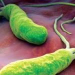Симптомы хеликобактер пилори и методы лечения