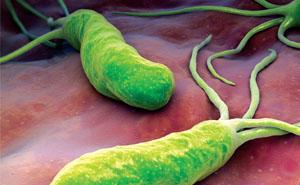 Симптомы и лечение хеликобактера пилори