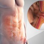 Пупочная грыжа у взрослых симптомы лечение