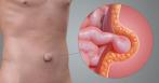 Симптомы пупочной грыжи у взрослых, фото, лечение