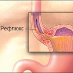 Симптомы рефлюкс-эзофагита, лечение и диета