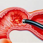 Симптомы язвы двенадцатиперстной кишки, лечение и диета