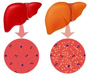 Лечение гепатоза печени