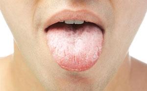 Что означает белый налет на языке у взрослого: причины, лечение и фото