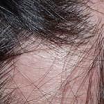 Стригущий лишай у человека: фото, симптомы и лечение