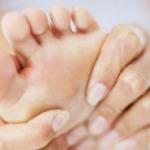 Грибок стопы – симптомы, как передается и как лечить