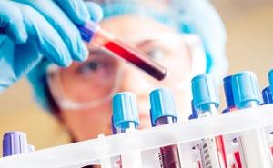 Повышена мочевая кислота в крови: причины, симптомы и лечение