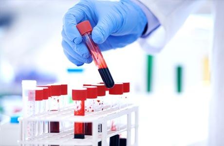 На что влияет уровень холестерина в крови у женщин
