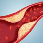 Холестерин: норма у женщин по возрасту (таблица)