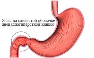 Гастродуоденит: симптомы, лечение, диета