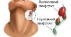 Воспаление лимфоузлов на шее: симптомы и лечение