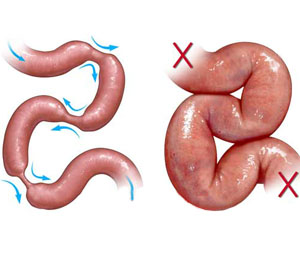 Вывод кишечника наружу