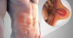 Лечение паховой грыжи без операции у мужчин