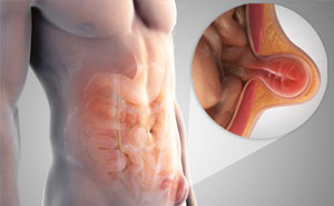 Как снять боль при паховой грыжи у мужчин