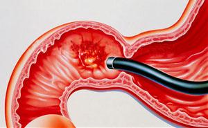 Язва двенадцатиперстной кишки симптомы и лечение
