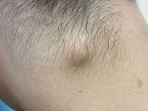 Воспаление лимфоузлов на затылке