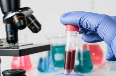 Urea в биохимическом анализе крови причины повышения и понижения