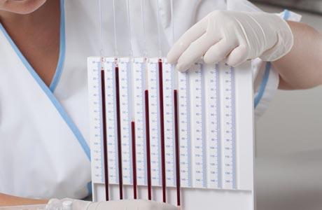 Повышенное СОЭ в крови: что это значит. Причины и симптомы высокого значения СОЭ. Что делать ( отзывы)