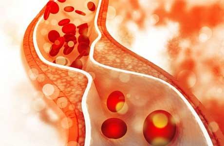 Норма холестерина в крови у женщин и мужчин, какой должен быть холестерин у здорового человека при анализе крови