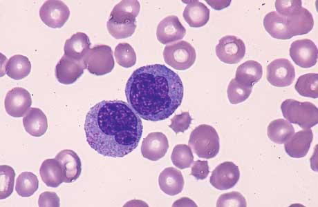 Анализ крови у женщин моноциты