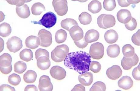 Что делать если уровень содержания базофилов в крови повышен
